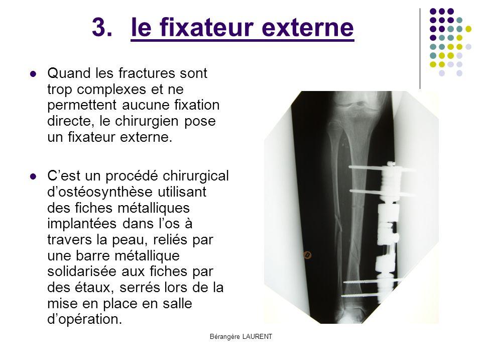 le fixateur externe Quand les fractures sont trop complexes et ne permettent aucune fixation directe, le chirurgien pose un fixateur externe.