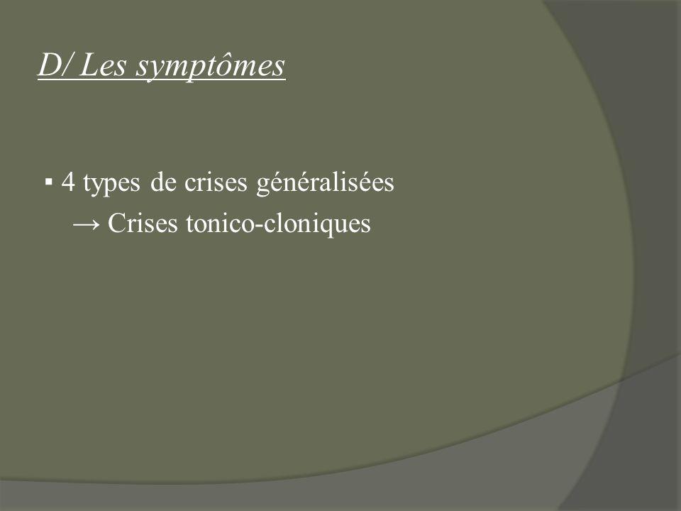 D/ Les symptômes ▪ 4 types de crises généralisées → Crises tonico-cloniques