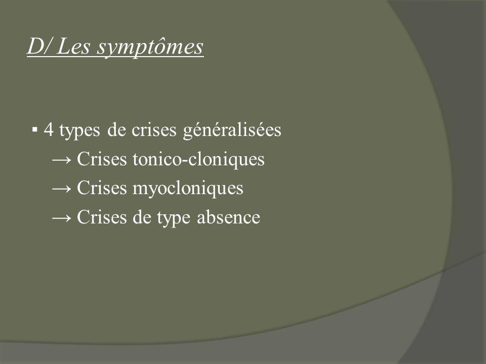 D/ Les symptômes ▪ 4 types de crises généralisées → Crises tonico-cloniques → Crises myocloniques → Crises de type absence