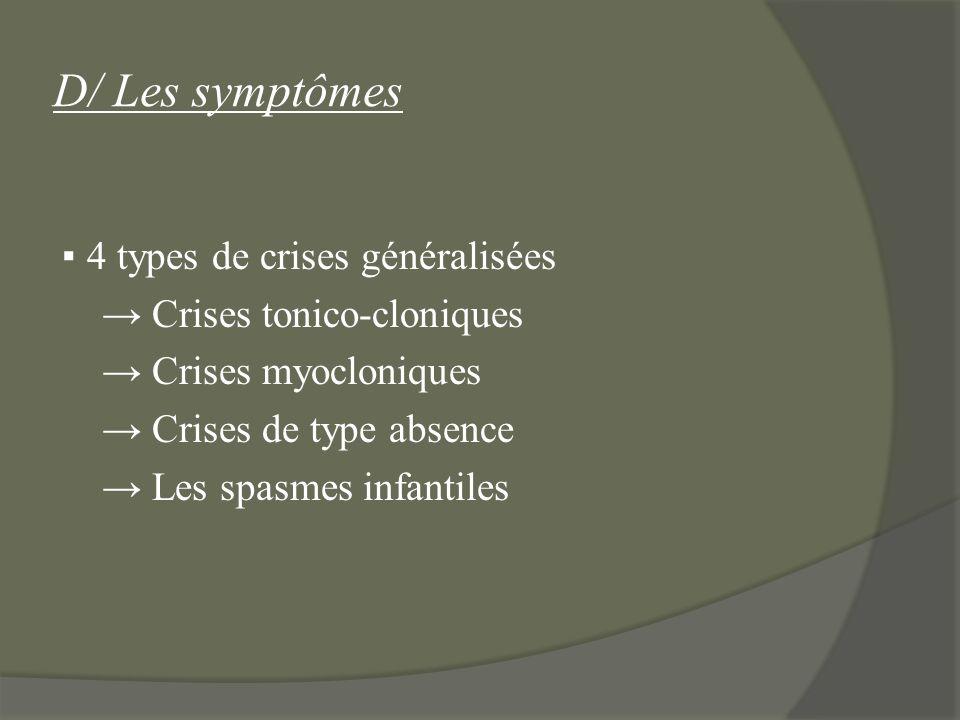D/ Les symptômes ▪ 4 types de crises généralisées → Crises tonico-cloniques → Crises myocloniques → Crises de type absence → Les spasmes infantiles