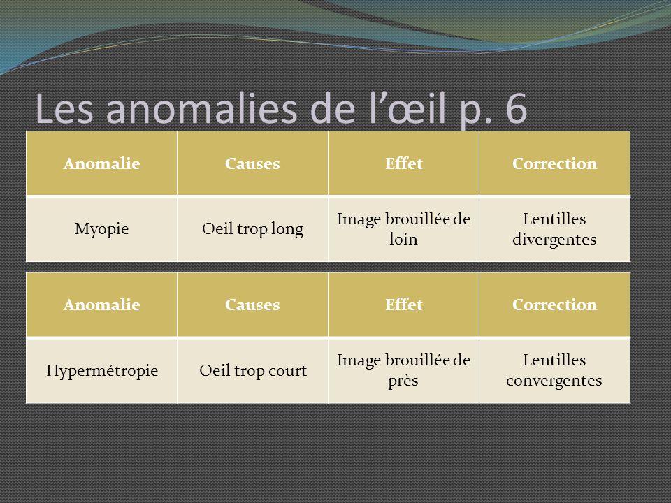 Les anomalies de l'œil p. 6