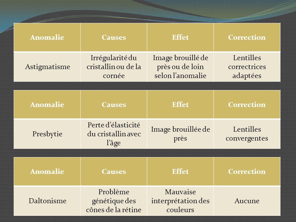 Irrégularité du cristallin ou de la cornée