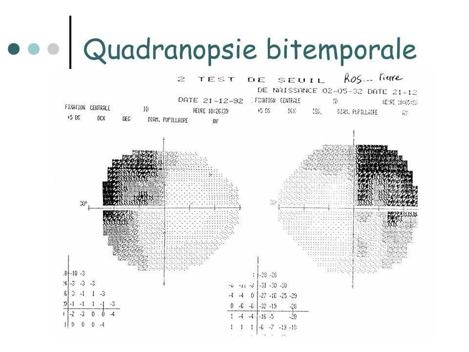 Quadranopsie bitemporale