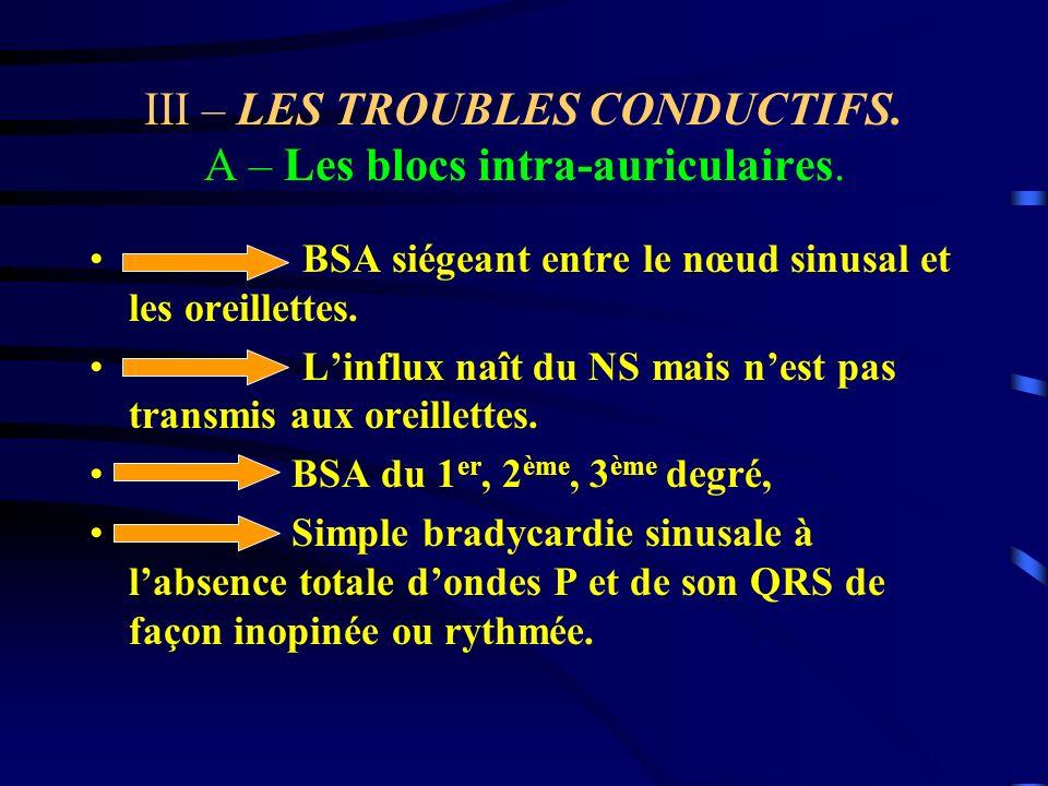 III – LES TROUBLES CONDUCTIFS. A – Les blocs intra-auriculaires.