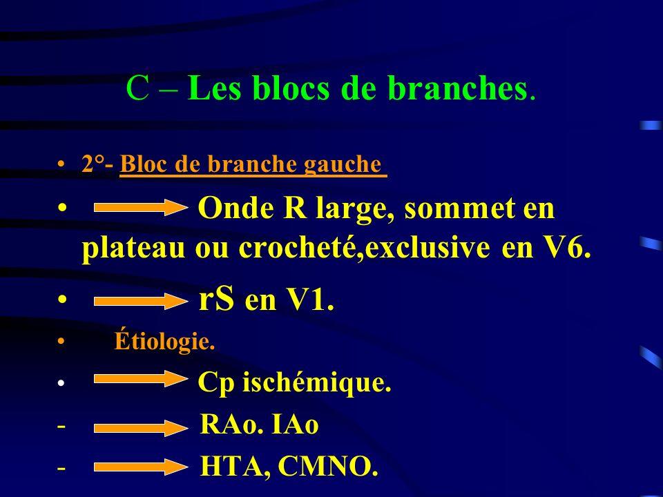 C – Les blocs de branches.