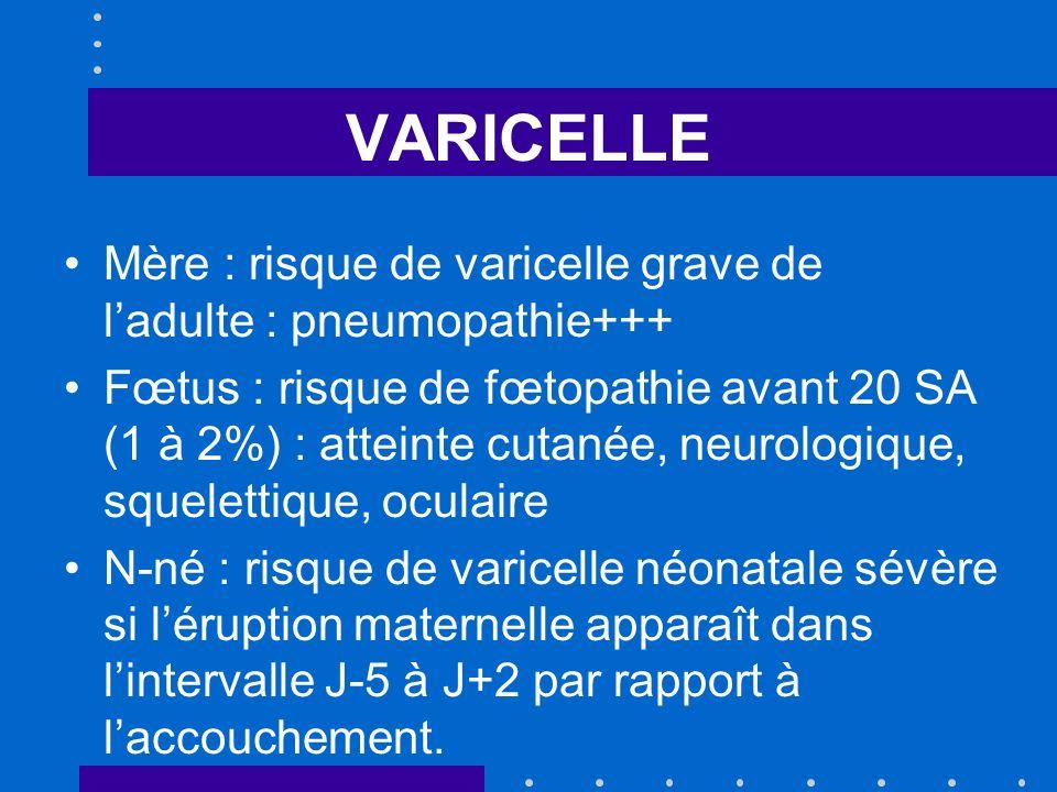 VARICELLE Mère : risque de varicelle grave de l'adulte : pneumopathie+++