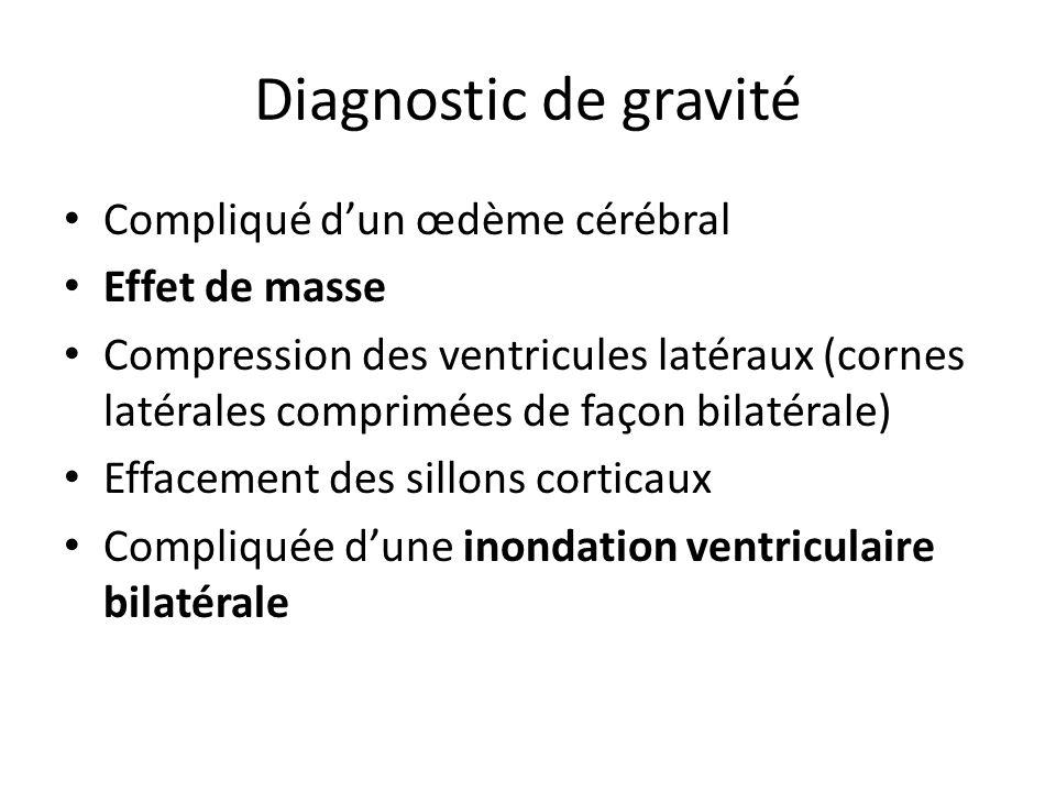 Diagnostic de gravité Compliqué d'un œdème cérébral Effet de masse