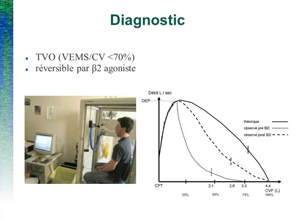 Diagnostic TVO (VEMS/CV <70%) réversible par β2 agoniste