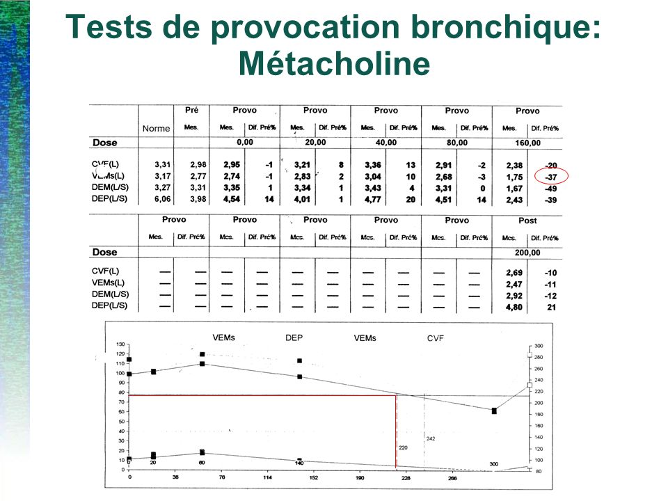 Tests de provocation bronchique: Métacholine