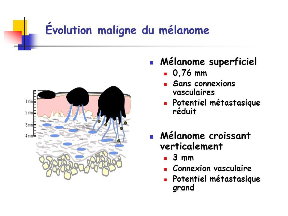 Évolution maligne du mélanome