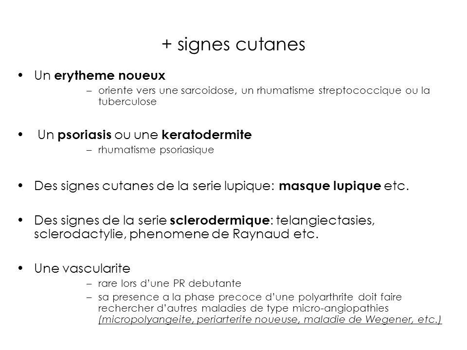 + signes cutanes Un erytheme noueux Un psoriasis ou une keratodermite