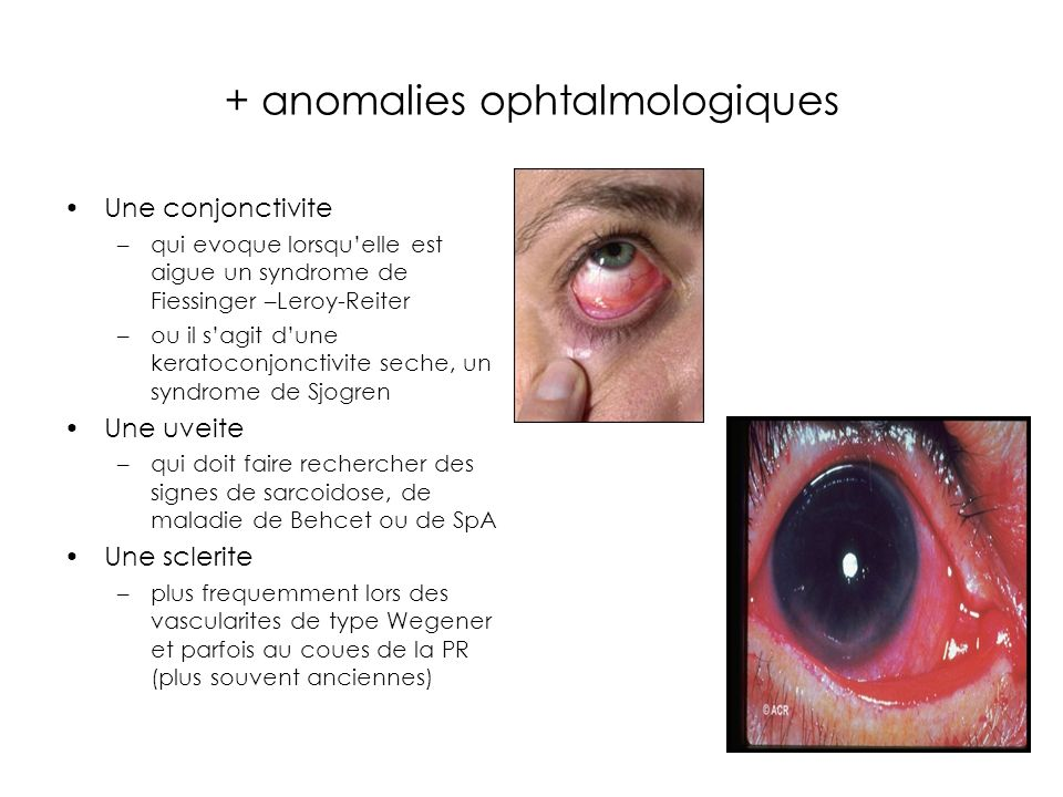 + anomalies ophtalmologiques