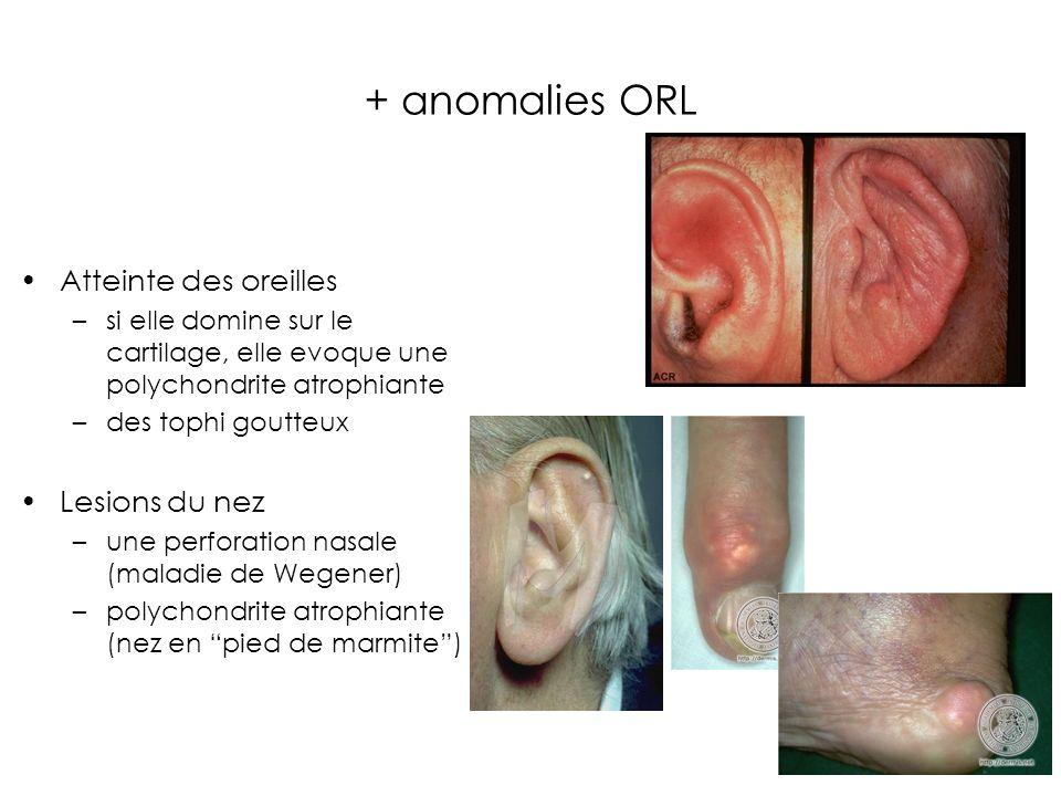 + anomalies ORL Atteinte des oreilles Lesions du nez