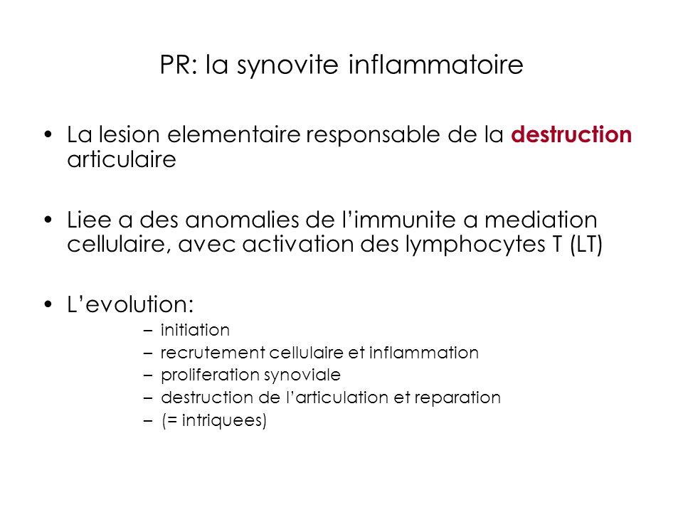 PR: la synovite inflammatoire