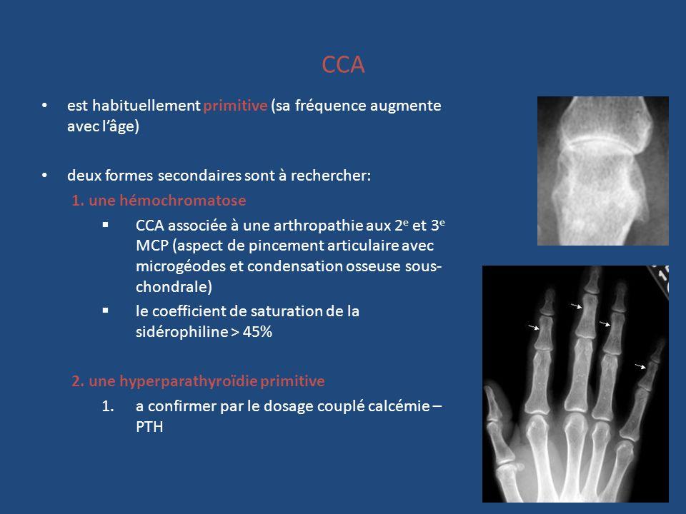 CCA est habituellement primitive (sa fréquence augmente avec l'âge)