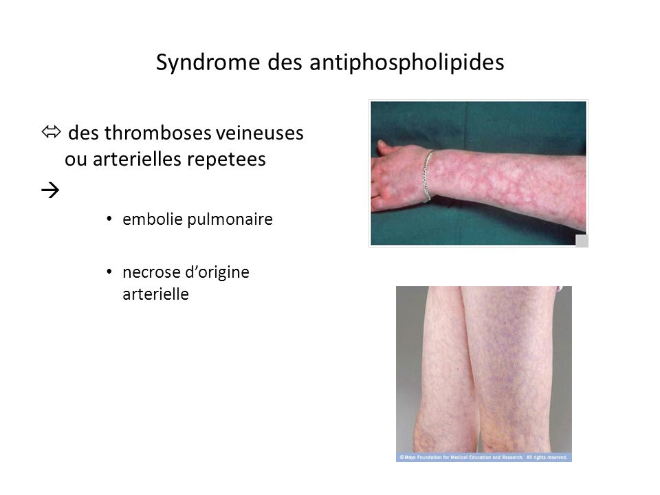 Syndrome des antiphospholipides