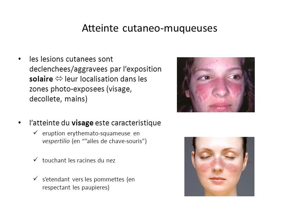 Atteinte cutaneo-muqueuses