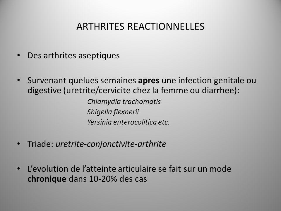 ARTHRITES REACTIONNELLES