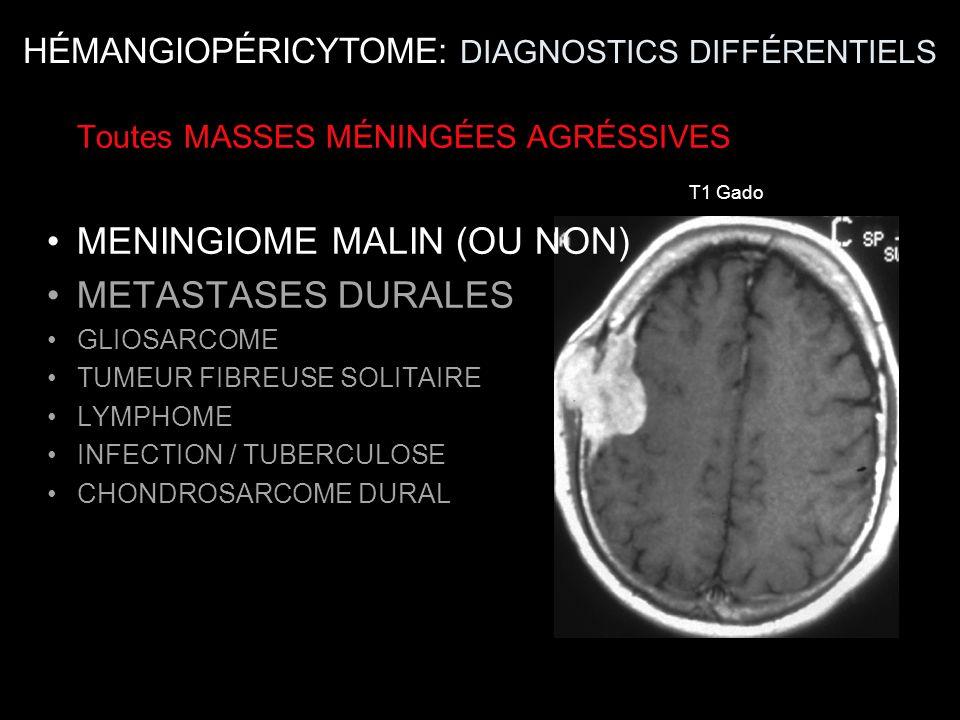 HÉMANGIOPÉRICYTOME: DIAGNOSTICS DIFFÉRENTIELS