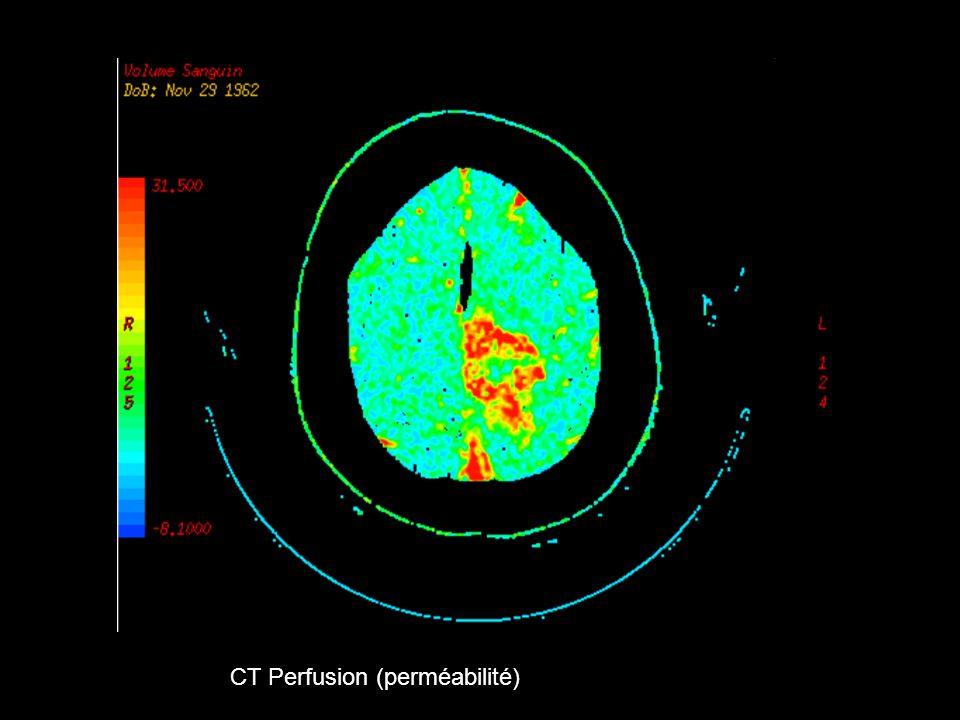 CT Perfusion (perméabilité)