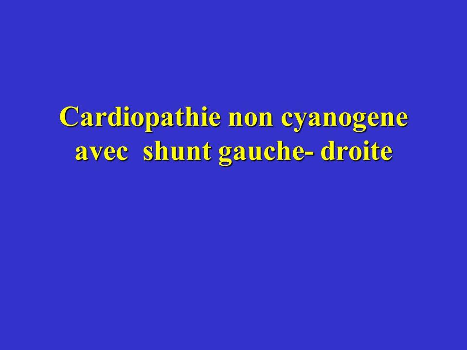 Cardiopathie non cyanogene avec shunt gauche- droite
