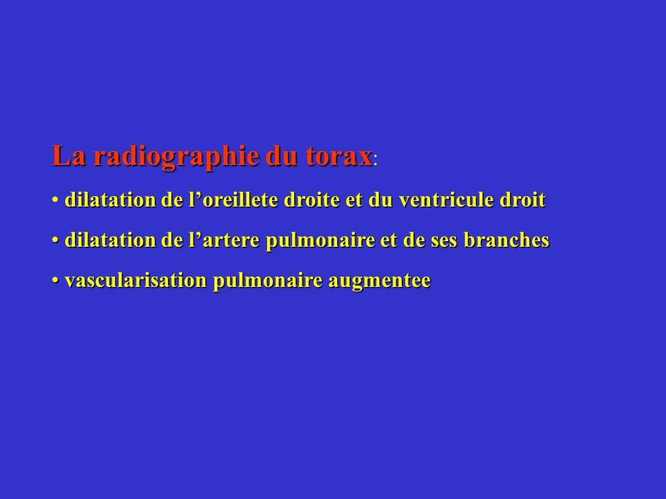 La radiographie du torax: