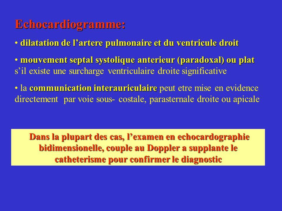 Echocardiogramme: dilatation de l'artere pulmonaire et du ventricule droit.