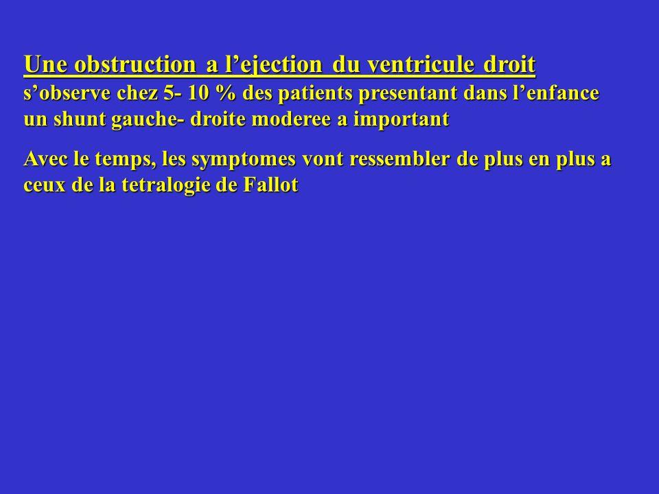 Une obstruction a l'ejection du ventricule droit s'observe chez 5- 10 % des patients presentant dans l'enfance un shunt gauche- droite moderee a important