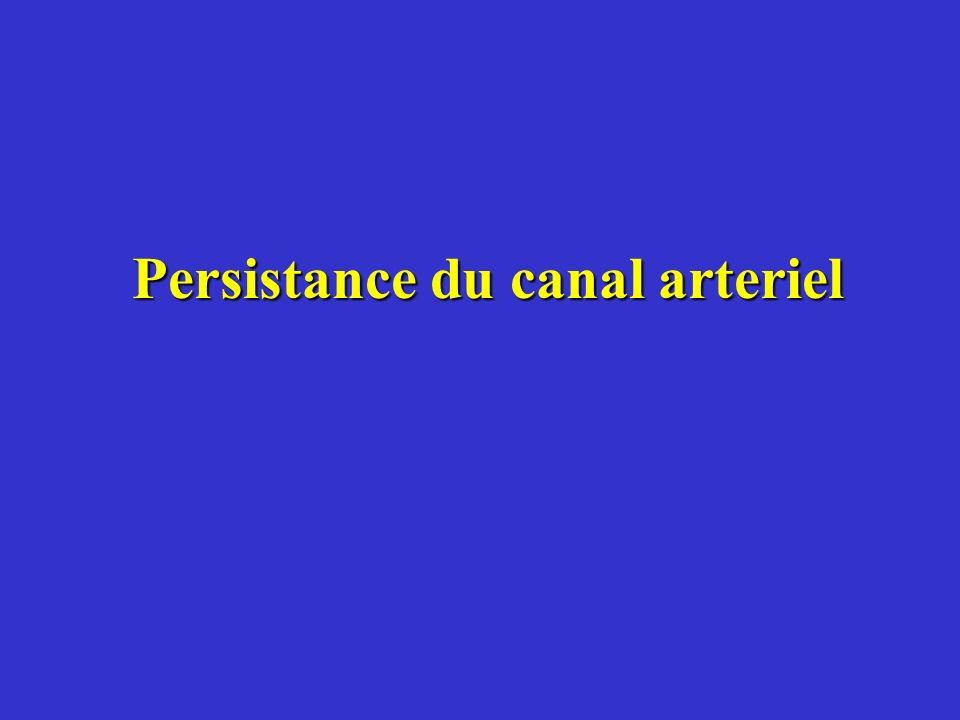 Persistance du canal arteriel