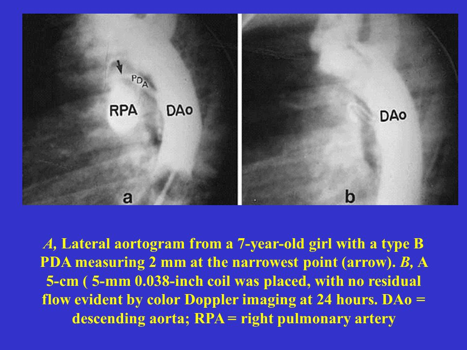 A, Lateral aortogram from a 7-year-old girl with a type B PDA measuring 2 mm at the narrowest point (arrow).