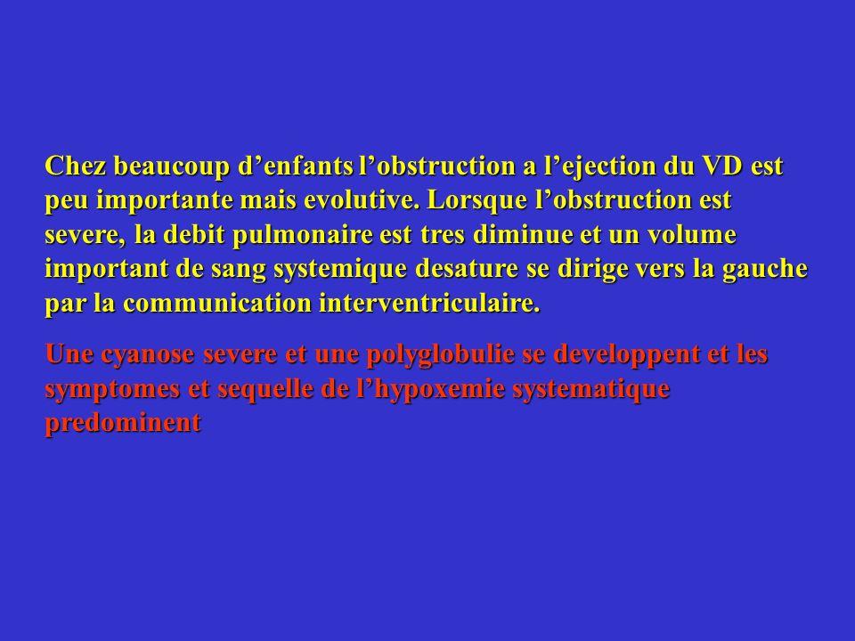 Chez beaucoup d'enfants l'obstruction a l'ejection du VD est peu importante mais evolutive. Lorsque l'obstruction est severe, la debit pulmonaire est tres diminue et un volume important de sang systemique desature se dirige vers la gauche par la communication interventriculaire.