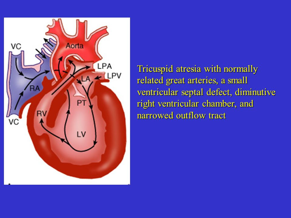 Tricuspid atresia with normally related great arteries, a small ventricular septal defect, diminutive right ventricular chamber, and narrowed outflow tract