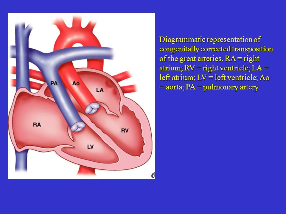 Diagrammatic representation of congenitally corrected transposition of the great arteries.