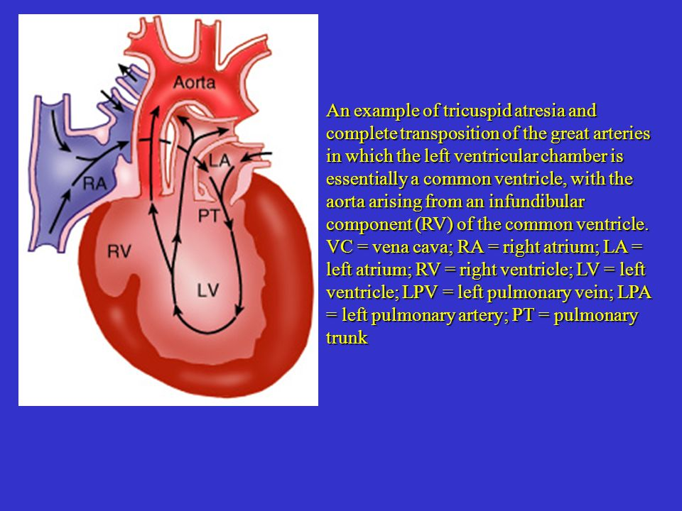 An example of tricuspid atresia and complete transposition of the great arteries in which the left ventricular chamber is essentially a common ventricle, with the aorta arising from an infundibular component (RV) of the common ventricle.