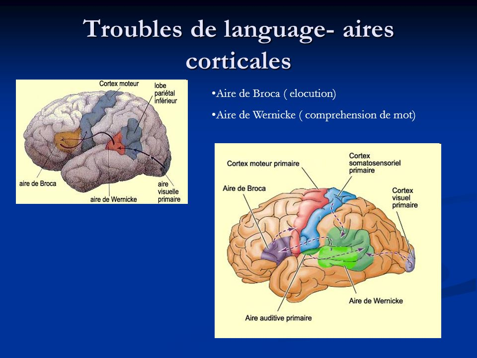Troubles de language- aires corticales