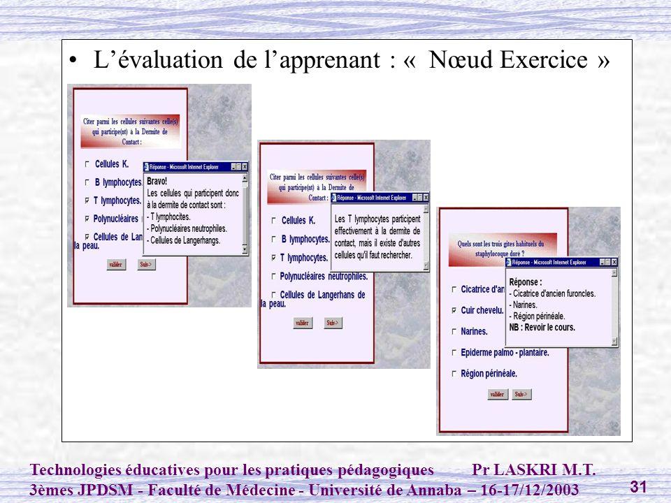 L'évaluation de l'apprenant : « Nœud Exercice »