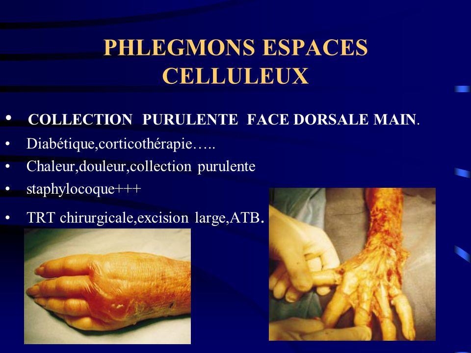 PHLEGMONS ESPACES CELLULEUX