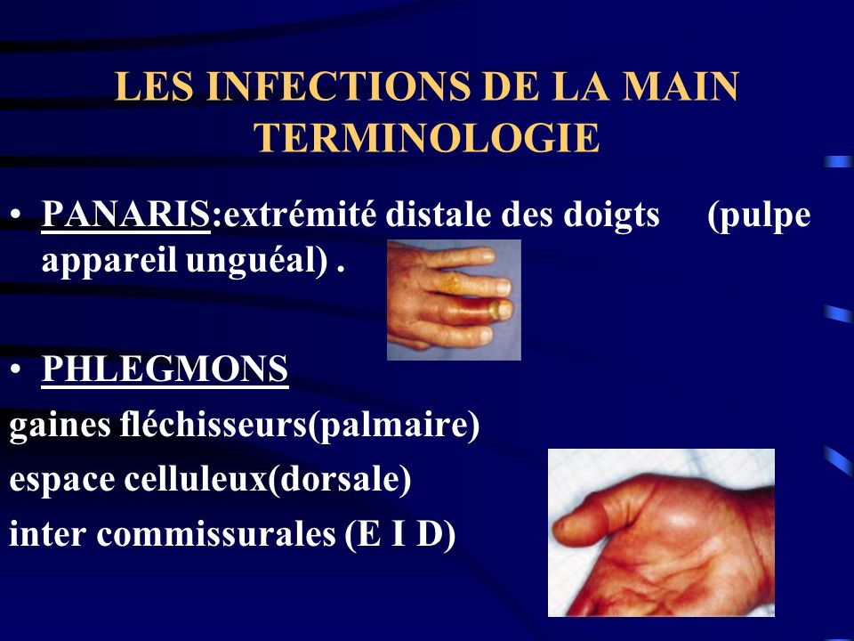 LES INFECTIONS DE LA MAIN TERMINOLOGIE