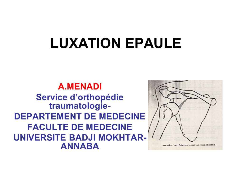 LUXATION EPAULE A.MENADI Service d'orthopédie traumatologie-