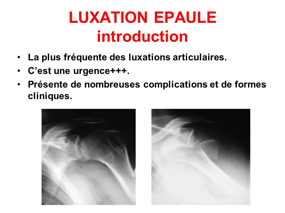 LUXATION EPAULE introduction