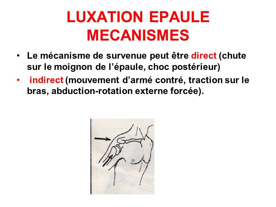 LUXATION EPAULE MECANISMES