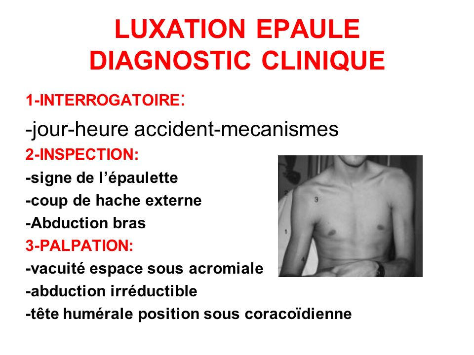 LUXATION EPAULE DIAGNOSTIC CLINIQUE