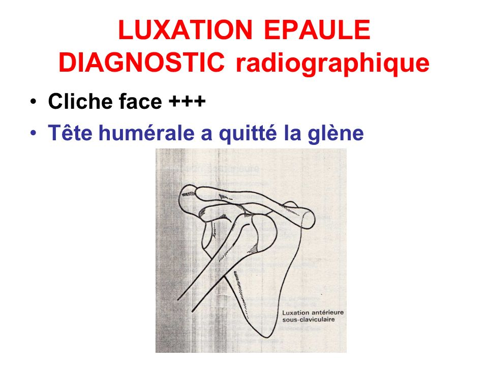 LUXATION EPAULE DIAGNOSTIC radiographique
