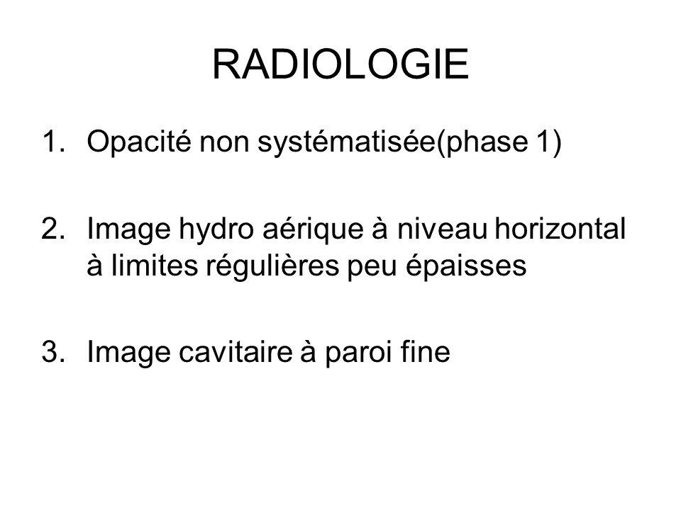 RADIOLOGIE Opacité non systématisée(phase 1)