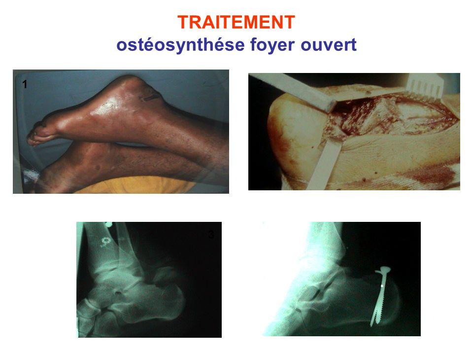 TRAITEMENT ostéosynthése foyer ouvert