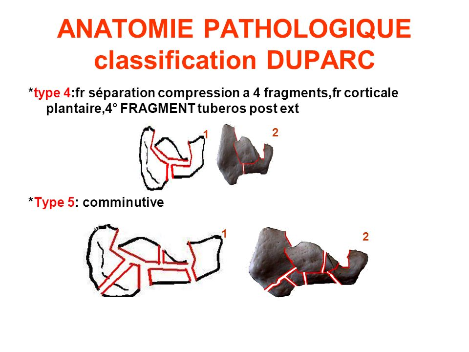 ANATOMIE PATHOLOGIQUE classification DUPARC