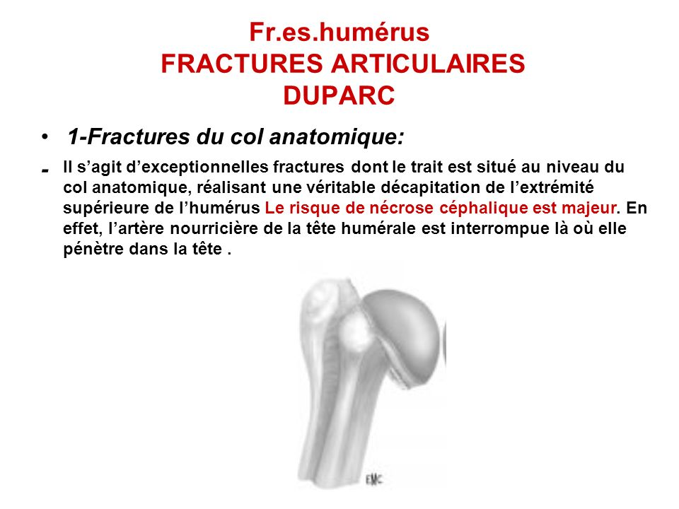 Fr.es.humérus FRACTURES ARTICULAIRES DUPARC