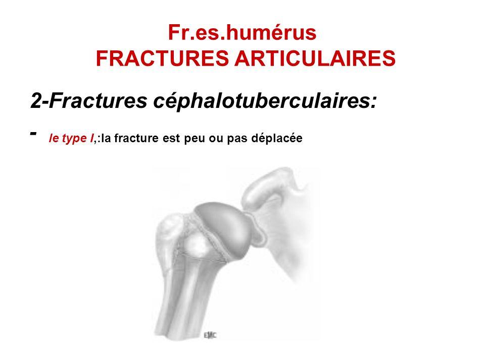 Fr.es.humérus FRACTURES ARTICULAIRES