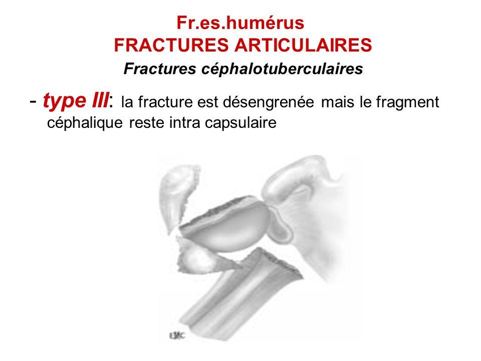 Fr.es.humérus FRACTURES ARTICULAIRES Fractures céphalotuberculaires