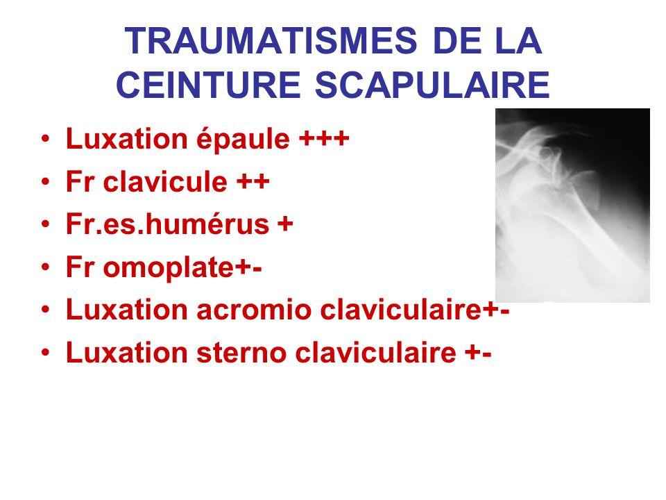 TRAUMATISMES DE LA CEINTURE SCAPULAIRE